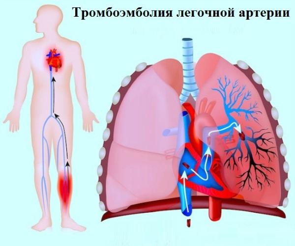 При тромбоэмболии легочной артерии возникает боль в груди, одышка, кашель