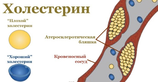 Препарат приводит в норму уровень холестерина