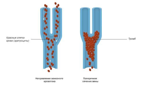 Препарат назначают при венозном тромбозе