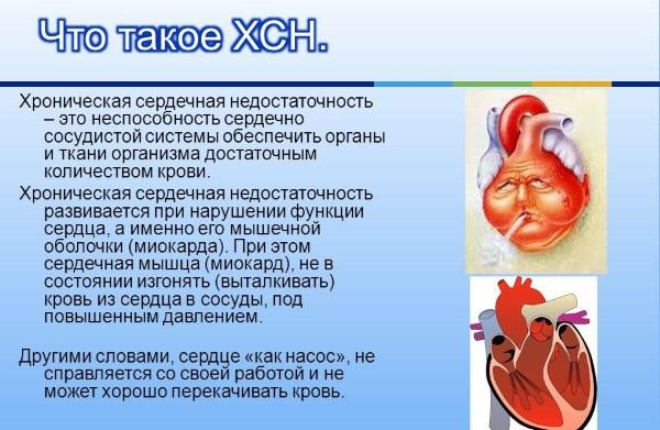 Препарат применяется при хронической сердечной недостаточности