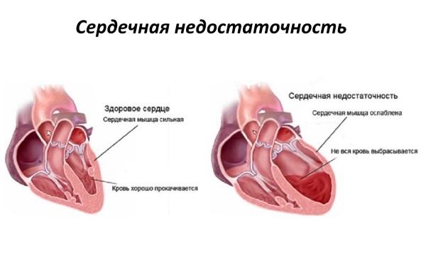 Основные признаки сердечной недостаточности