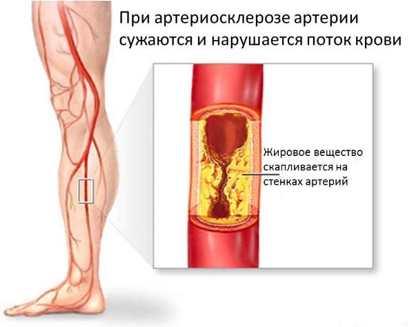 Применяется при тромбозе вен