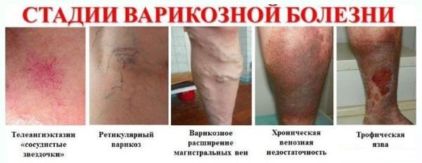 Если не лечить варикоз, он может развеиваться в хроническую стадию