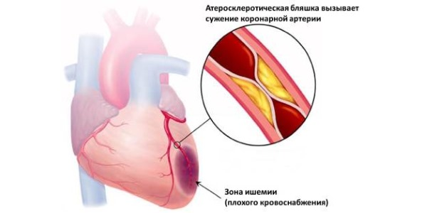 Ишемия сердца приводит к отмиранию миокарда